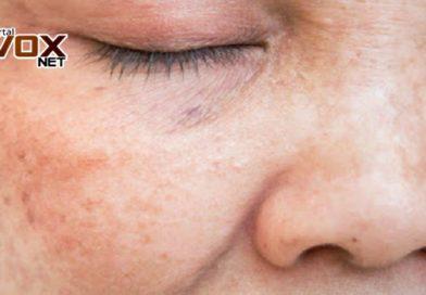 Curiosidade – Aprenda a remover as manchas da pele usando mel e limão